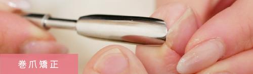 アモネイル|巻き爪補正